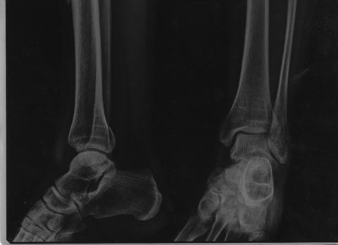 Рентгеновский снимок делают в двух проекциях