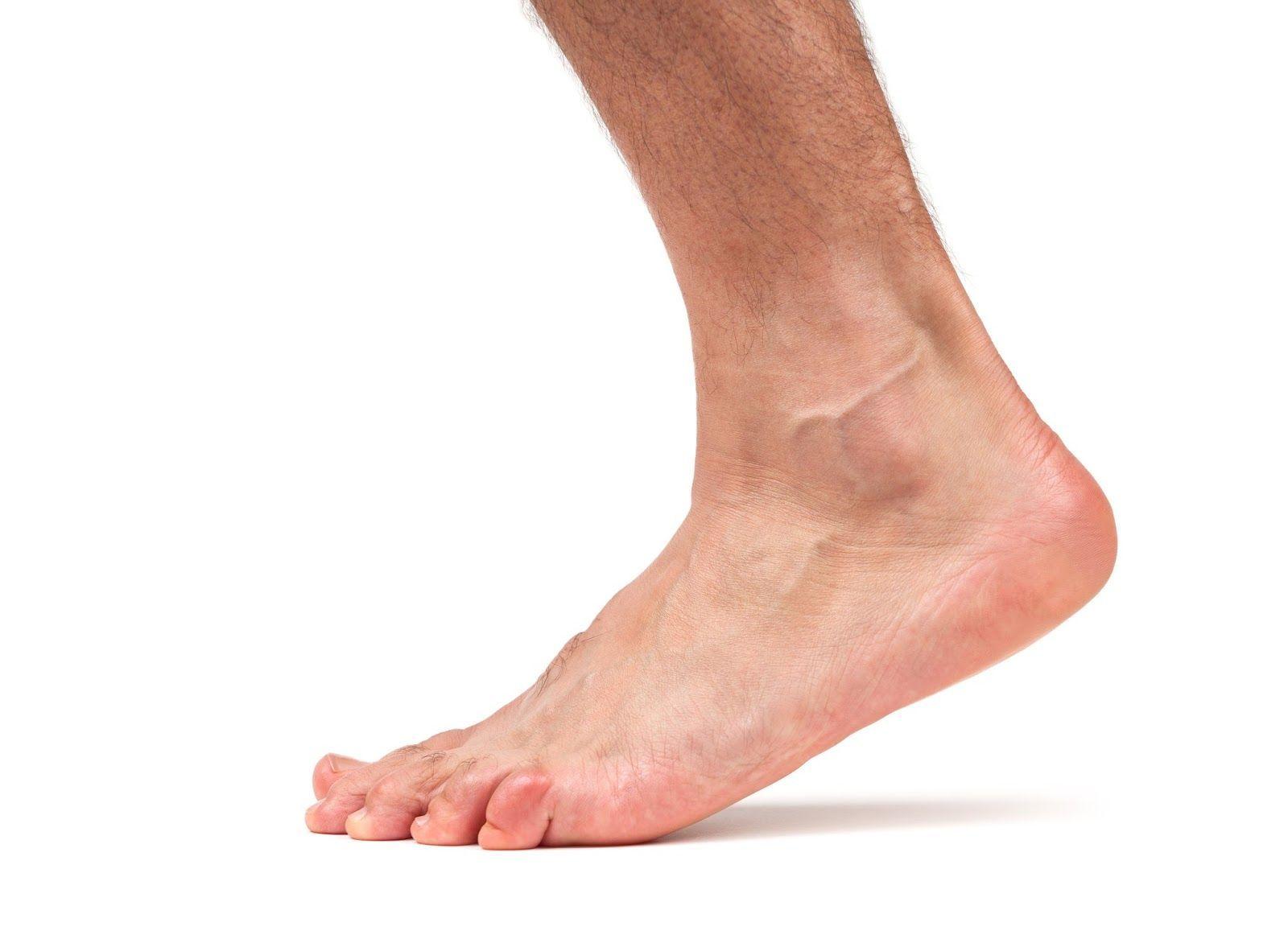 Перелом голеностопного сустава — как возникает, каковы симптомы и лечение