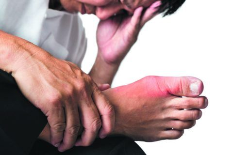 При приступе подагры палец краснеет и опухает