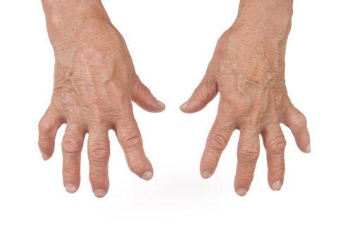 Руки ноют, и сильно крутит (ломят) суставы рук - возможно, это ревматоидный артрит