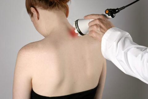 При шейной невралгии полезными будут физиопроцедуры