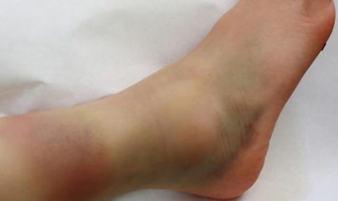 При травмах происходит кровоизлияние и отек в голеностопном сочленении