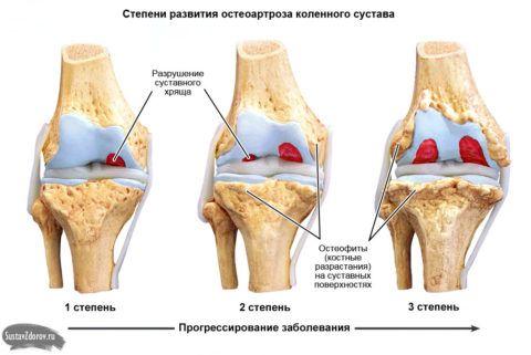 Прогрессирует заболепвани от первой степени остеоартроза к третьей