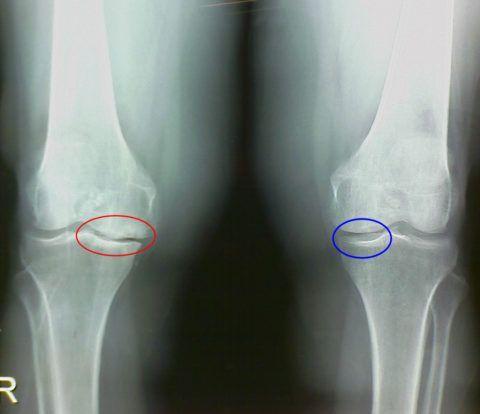 Метод используется для диагностики остеоартроза