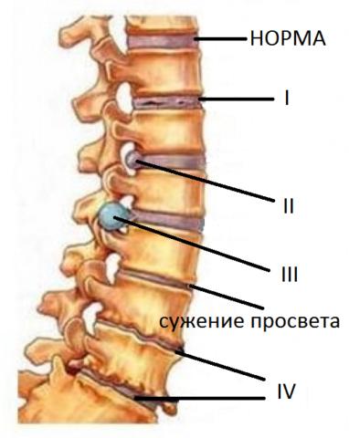 Симптомы при остеохондрозе поясничного отдела позвоночника напрямую коррелируют со степенью развития необратимых процессов в поясничных структурах