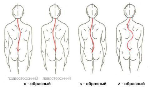 Сколиозы бывают трёх видов: С-образные, S-образные и Z-образные. Последние встречаются крайне редко. Все разновидности могут быть левосторонними или правосторонними.