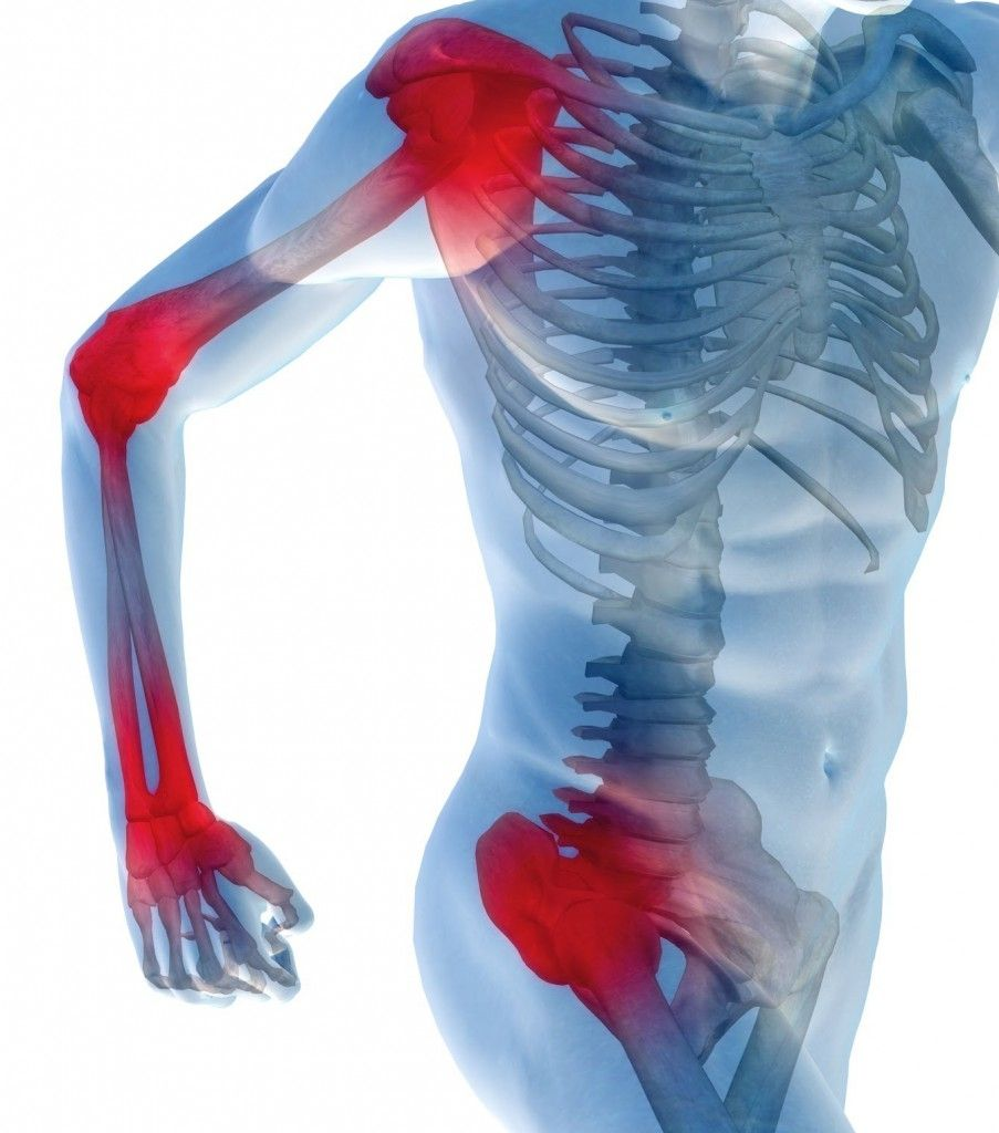 Почему возникает боль в суставах и что поможет её вылечить