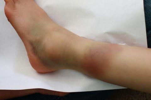 Так выглядит нога при разрыве связок и вывихе сустава – нарушении его целостности и структуры капсулы