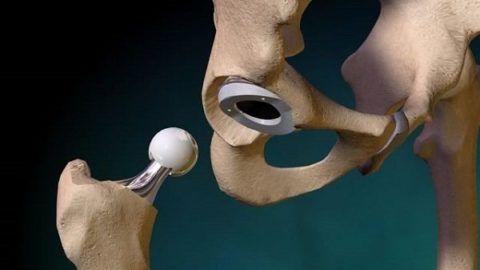 В первые 24 часа после замены сустава вставать строго запрещается