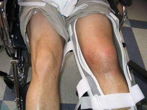 В сложных случаях и при запущенной стадии воспаления ставится шина на ногу