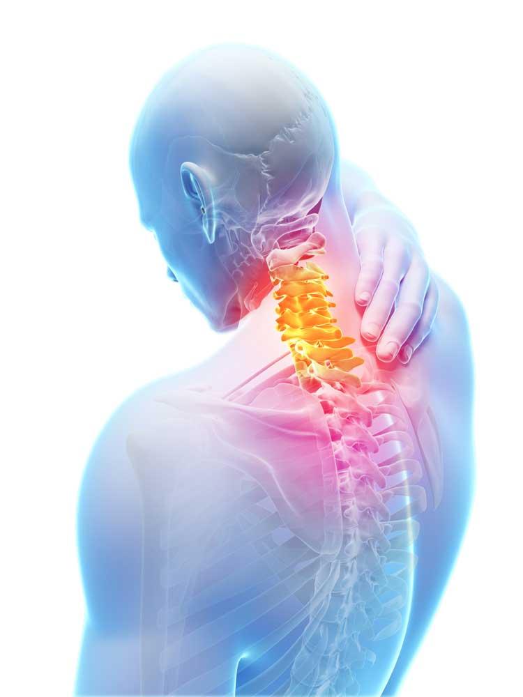 Боль в шее – одна из частых причин проведения МРТ-исследования.
