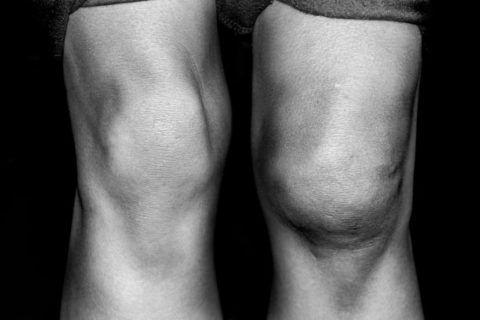 Внешний вид колен при смещении надколенника.