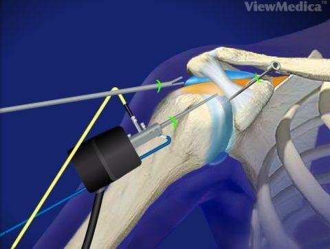 Введение микроинструментов в бурсу при артроскопии