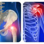 Алезан поможет при хронических недугах костей и суставов