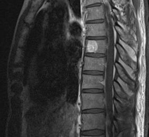 Что такое гемангиома позвоночного диска на рентгеновском снимке – белое пятно