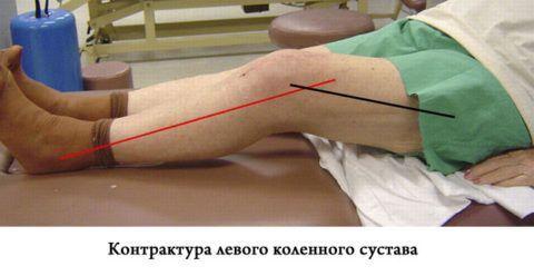 Контрактура колена значительно мешает больному при ходьбе.