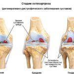 Контрактура может появиться как следствие остеоартроза