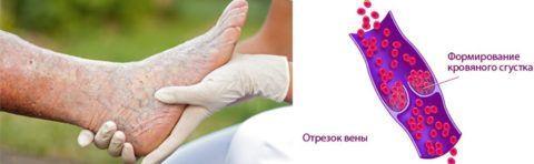 Кровяные сгустки могут возникнуть в венах прооперированной ноги.