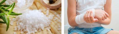 Лечение солью сочленений – применяется в народной медицине уже давно.