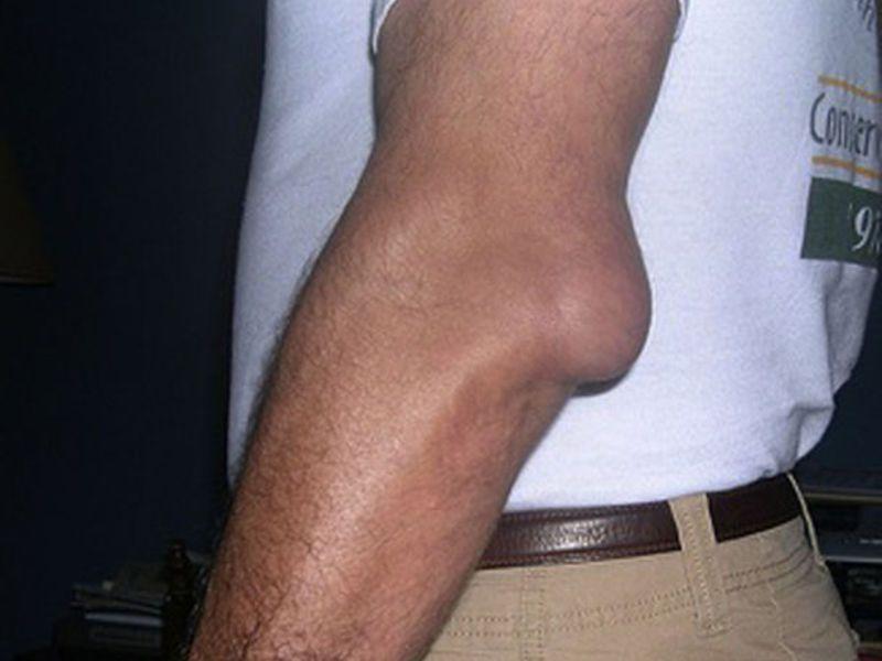 Бурсит локтевого сустава: этиология, клиника, лечение