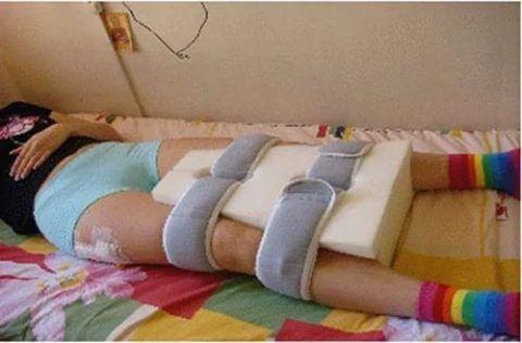 Некоторое время после операции надо будет спать с таким приспособлением