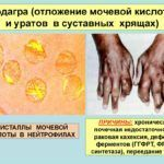 Подагра – одна из основных причин образования шишек на пальцах