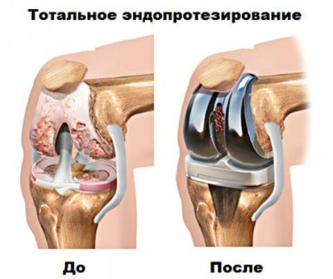 Тотальное эндопротезирование коленного сустава — Суставы