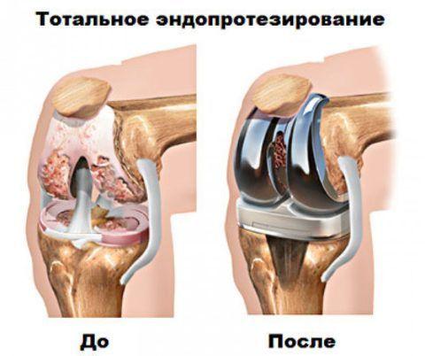 Подробно про эндопротезирование тазабедренного сустава