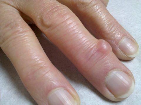 При гигроме шишечка на пальце обычно безболезненная.
