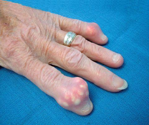 При остеоартрозе могут формироваться болезненные шишки на пальцах значительных размеров.
