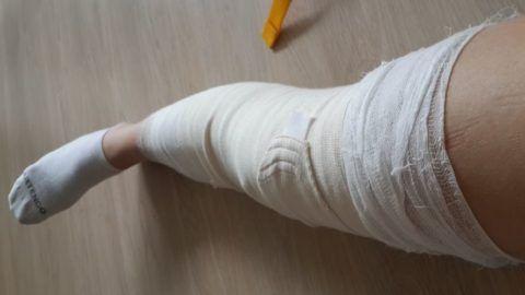 При трещине кости во время вмешательства по установке импланта или после нее понадобиться дополнительная иммобилизация конечности.