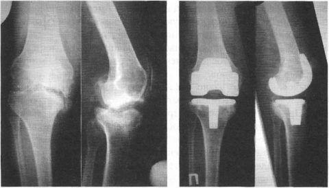 Рентгеновское обследование поможет судить врачу о причине сильной боли в колене у пациента.