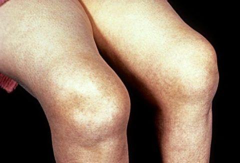 Ревматоидный полиартрит может являться противопоказанием для установки эндопротеза.
