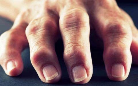Фото: на руке (суставах пальцев) появилась шишка