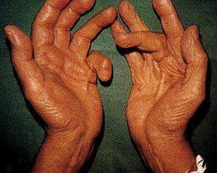 Скованность пальцев верхних конечностей приносит огромный дискомфорт больному.