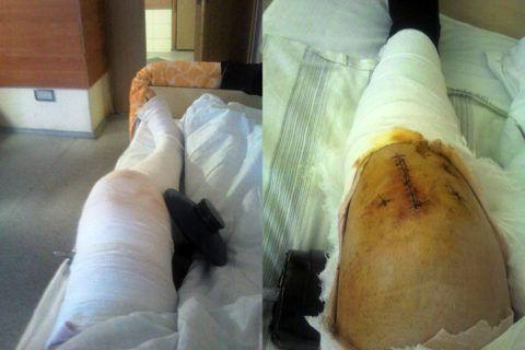 Состояние послеоперационной раны – важный показатель успешного восстановления.