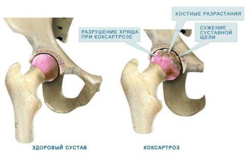 Сравнение больного сустава и пораженного болезнью