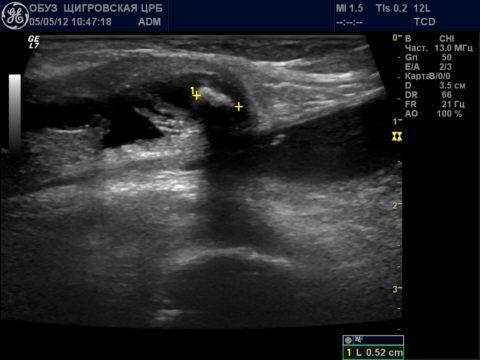 УЗИ коленного сустава с наличием полуперепончатого, тибиально-коллатерального бурсита и кисты Бейкера