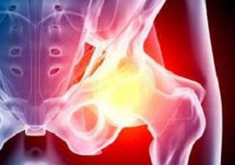 Лечение тазобедренного сустава при помощи народной медицины