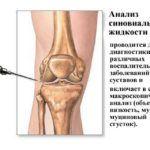 Анализ межсуставной жидкости утвердит врача в причинах деформирующего остеоартроза