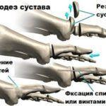 Артродез ставится при неправильном сращении костей после травмы