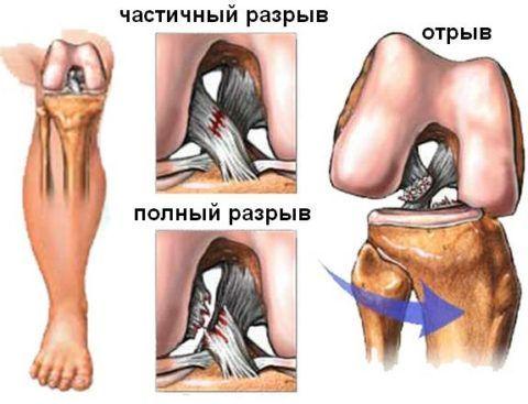 Боль с внутренней стороны коленного сустава может возникать и при травмах