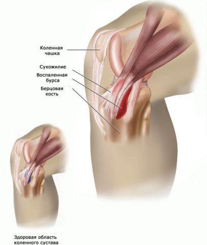 Боль сзади коленного сустава часто свидетельствует о бурсите