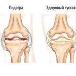 Часто при подагре колени сильно хрустят и движения в суставах совершаются с трудом