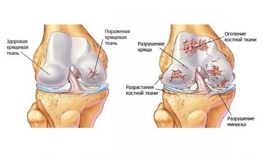 Деформирующий остеоартроз локтевых суставов: описание, причины, симптомы, диагностика и лечение