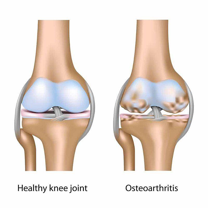 ДОА коленного сустава: что это за болезнь и как ее лечить?