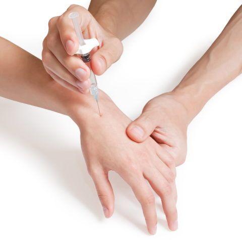 Для удаления скопившейся жидкости применяют пункцию сустава