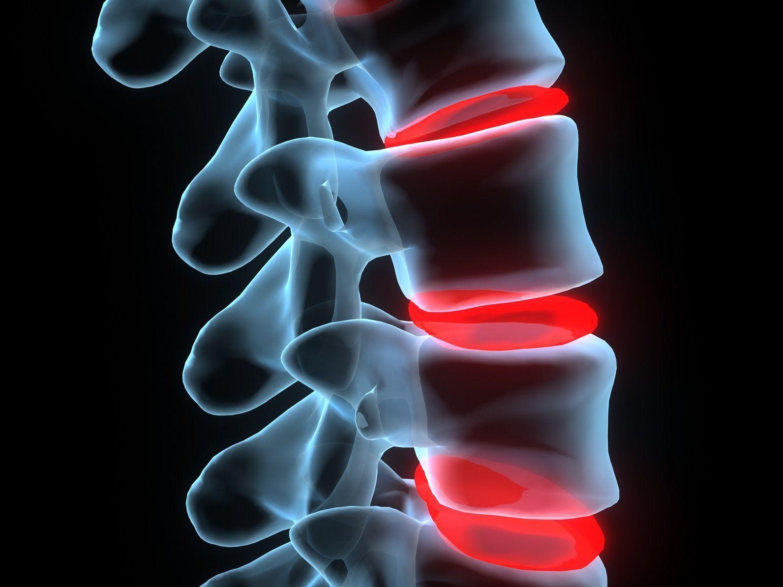 Что собой представляет артроз дугоотростчатых суставов: причины, симптомы, лечение