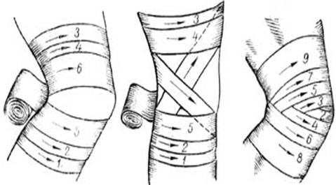 Профессиональным спортсменам эластичной лентой можно замотать колени или, например, локоть