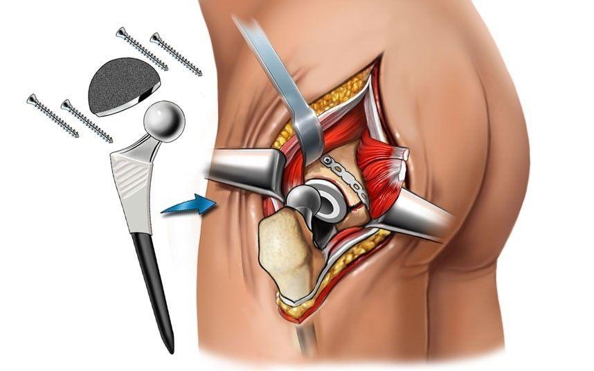 Эндопротезирование тазобедренного сустава: показания и противопоказания, классификация протезов, рекомендации